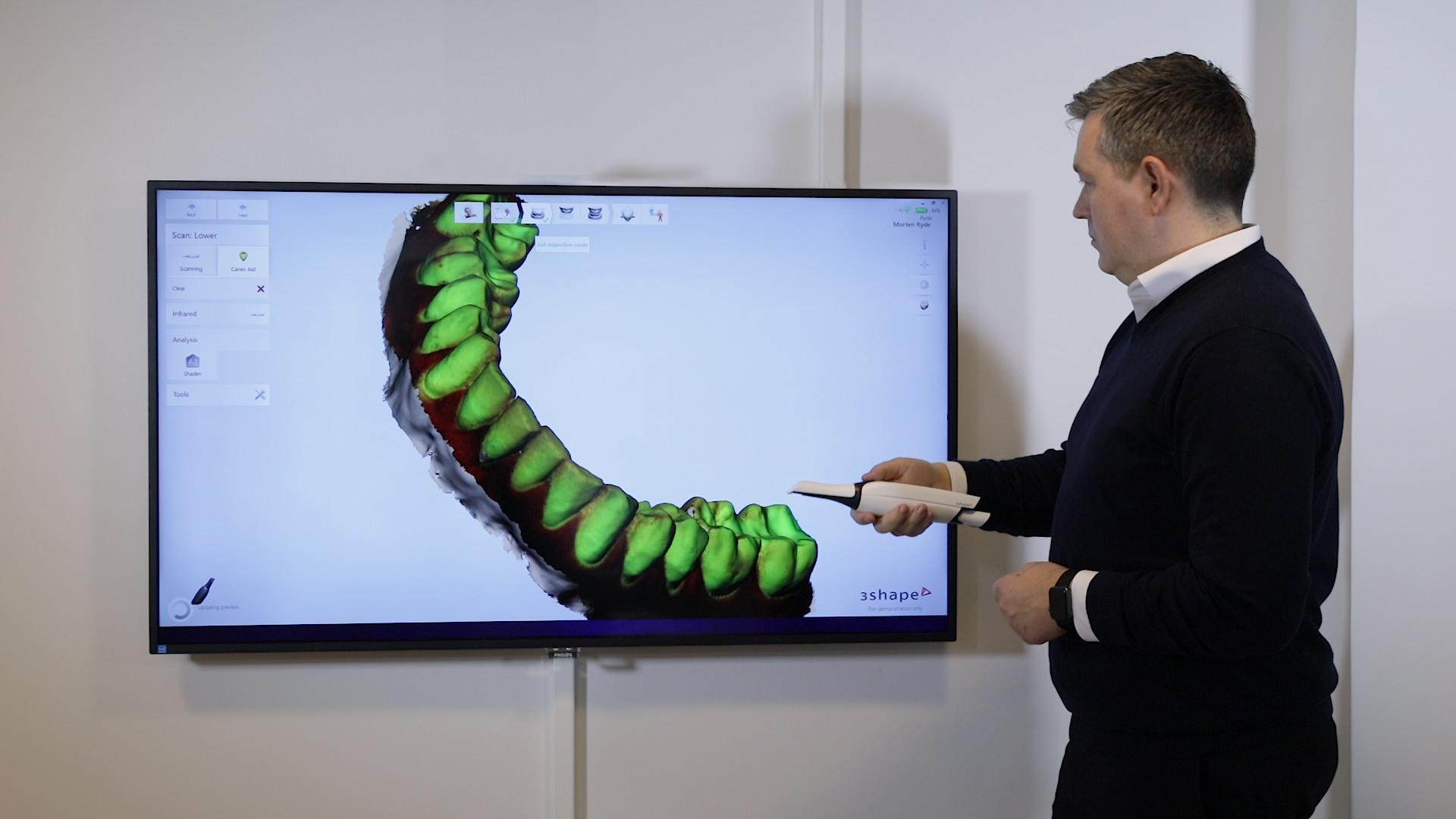 3Shape社のスキャナー  口腔内スキャナーはどこまで進化してきたか