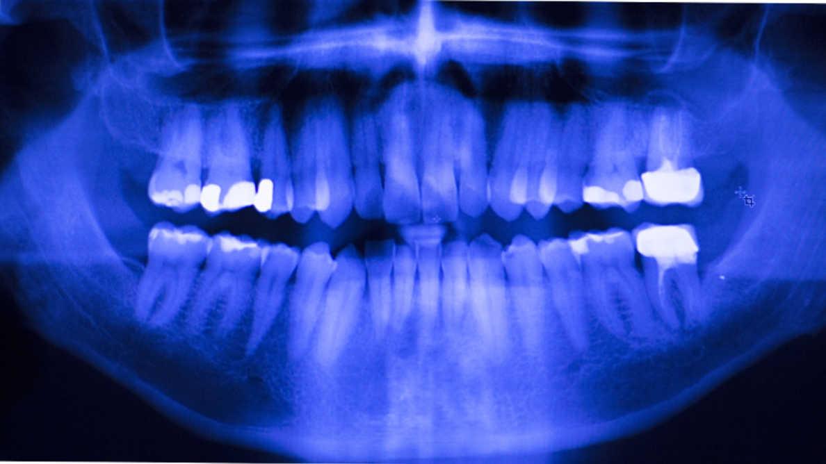 アマルガムからの脱却:歯科医師が適切な修復材料を選ぶための新しいオンラインツール
